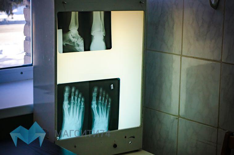 В Копейске двое неизвестных избили врача-травматолога во время приема