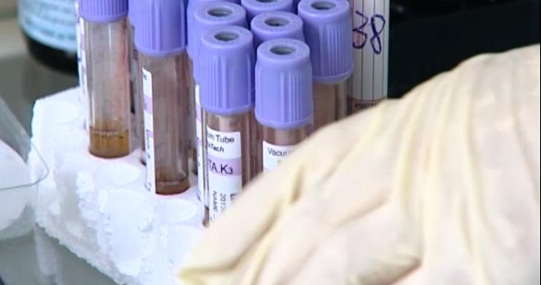 В Магнитке показатель заболеваемости ВИЧ выше областного на 30 процентов
