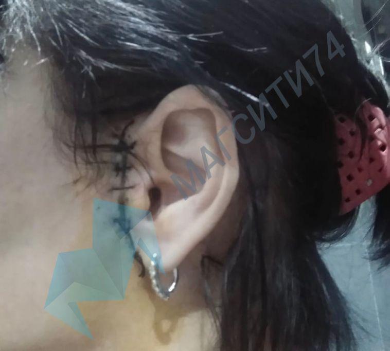 Горе-косметологу, которая обезобразила лицо пациентки, грозит 5 лет лишения свободы
